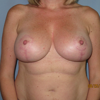 35-44 year old woman treated with Breast Lift with Implants after 3392304