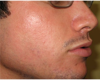 Intense Pulsed Light for Acne after 106462