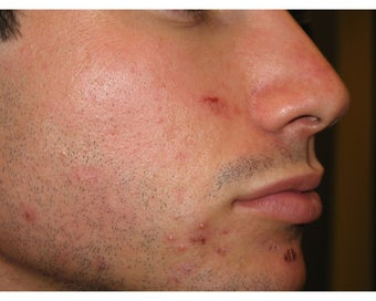 Intense Pulsed Light for Acne before 106462