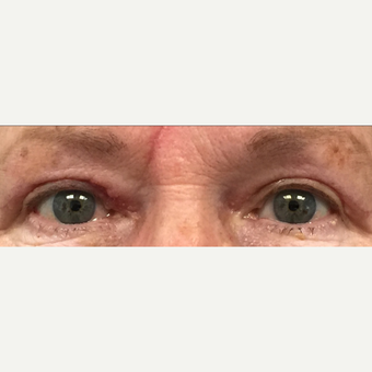 75 and up year old woman treated with Eyelid Surgery after 3841219