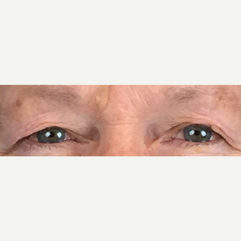 75 and up year old woman treated with Eyelid Surgery before 3841219
