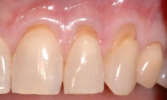 Gum Graft before 515414