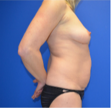 35-44 year old woman treated with Mommy Makeover 3173948