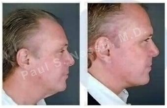 Lower Face and Neck Lift. before 138178