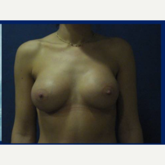25-34 year old woman treated with Breast Implants after 3831610