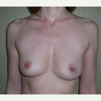 18-24 year old woman treated with Breast Augmentation before 3184639