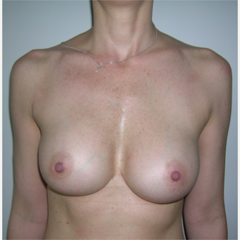 18-24 year old woman treated with Breast Augmentation after 3184639