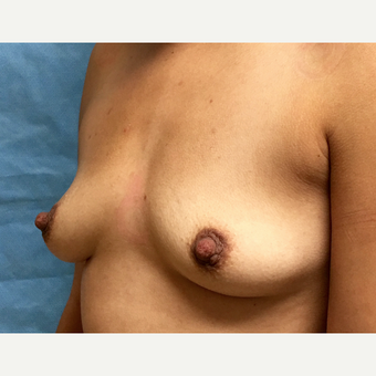 25-34 year old woman treated with Breast Augmentation before 3164778