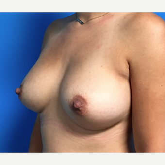 25-34 year old woman treated with Breast Augmentation after 3164778