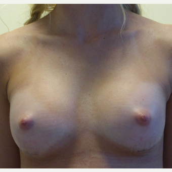 18-24 year old woman treated with Breast Augmentation after 3770001