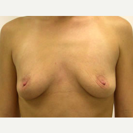 Breast Augmentation before 3681121