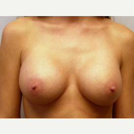 Breast Augmentation after 3681121