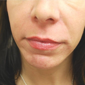 45-54 year old woman treated with Juvederm