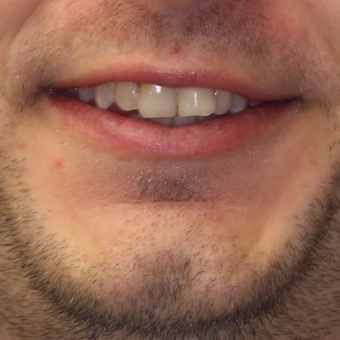25-34 year old man treated with Invisalign before 3763956