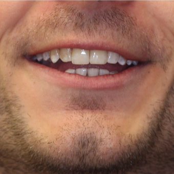 25-34 year old man treated with Invisalign after 3763956
