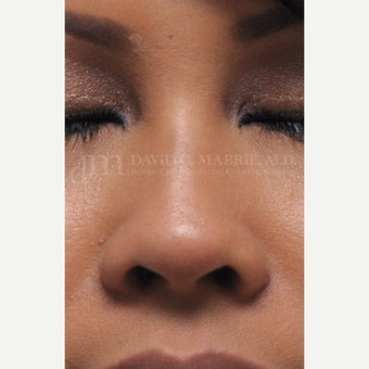 Woman treated with Non Surgical Nose Job 1843210
