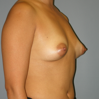 42 year old woman treated with Mentor Breast Implants before 3390799