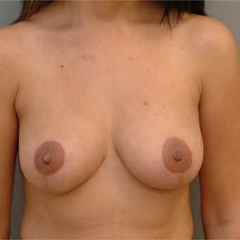 35-44 year old woman treated with Breast Lift after 3731926