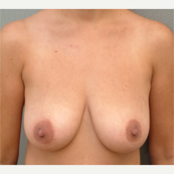 35-44 year old woman treated with Breast Lift before 3731926