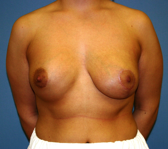 Breast Augmentation after 202666