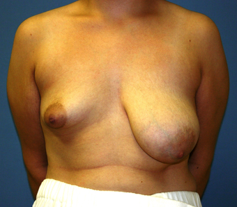 Breast Augmentation before 202666