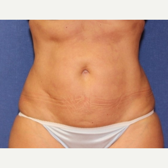 50 year old woman with Liposuction of the abdomen and bilateral upper hips after 3181375