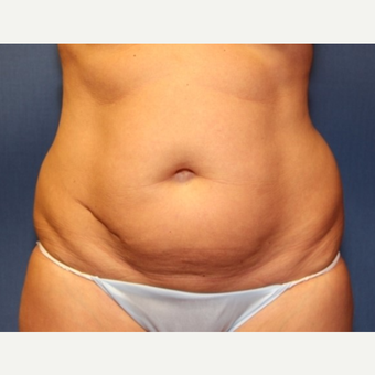 50 year old woman with Liposuction of the abdomen and bilateral upper hips before 3181375
