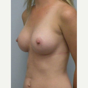 25-34 year old woman treated with Breast Augmentation after 2170194