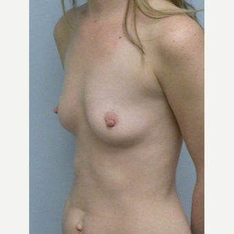 25-34 year old woman treated with Breast Augmentation before 2170194