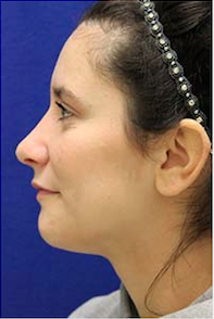 Rhinoplasty after 3202667