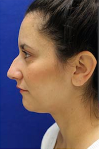 Rhinoplasty before 3202667