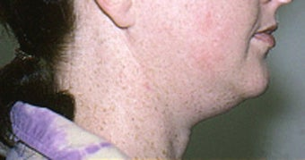Neck Liposuction before 68404