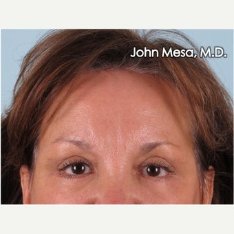45-54 year old woman treated with Endoscopic Biplanar Brow Lift