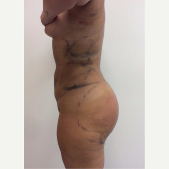 18-24 year old woman treated with Fat Transfer after 3658056