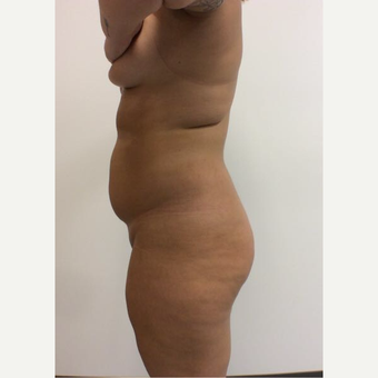 18-24 year old woman treated with Fat Transfer before 3658056