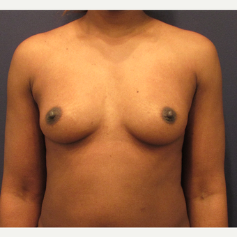 25-34 year old woman treated with Breast Augmentation before 3418612