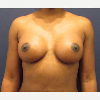 25-34 year old woman treated with Breast Augmentation after 3418612