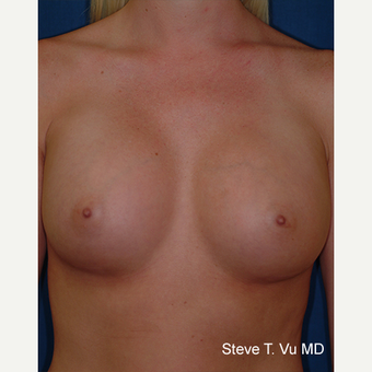 25-34 year old woman treated with Breast Augmentation after 3577120