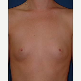 25-34 year old woman treated with Breast Augmentation before 3577120