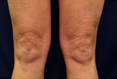 Body Laser Skin Tightening - Legs before 53750