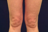 Body Laser Skin Tightening - Legs after 53750