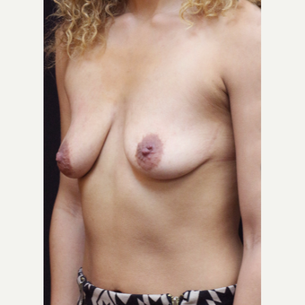 22 year old woman treated with Breast Augmentation before 3064226