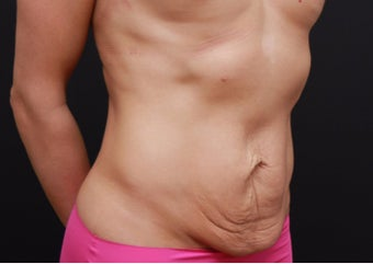 25-34 year old woman treated with Tummy Tuck before 3167756