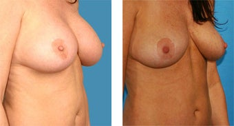 Breast Implant Removal with Internal Lift 562121