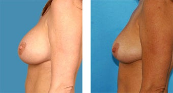 Breast Implant Removal with Internal Lift after 562121