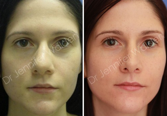 Septorhinoplasty before 1112644