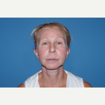 45-54 year old woman treated with Facelift after 3630241
