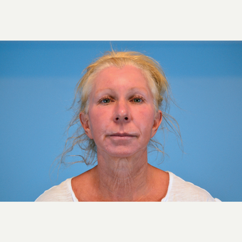 45-54 year old woman treated with Facelift before 3630241
