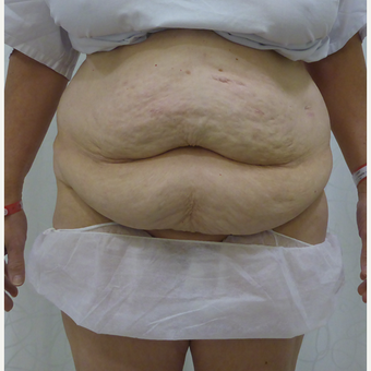 45-54 year old woman treated with Body Lift before 3419915