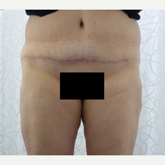 45-54 year old woman treated with Body Lift after 3419915